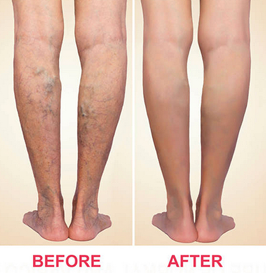 5 Reasons to See a Vein Specialist