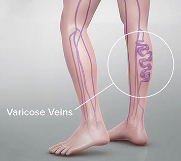 8 Tips for Varicose Vein Pain Relief