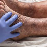 The Main Difference Between Spider and Varicose Veins