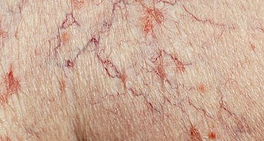 Spider Veins Treatment in NYC