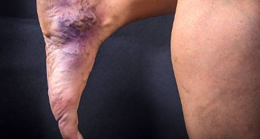 Venous Stasis Ulcer Treatment in NYC