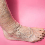 When varicose veins become dangerous?