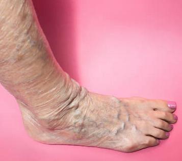 When varicose veins become dangerous?